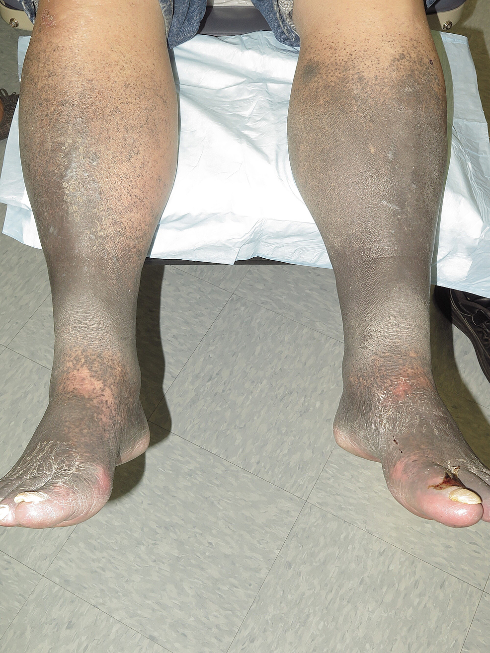 Lower-extremity-hyperpigmentation