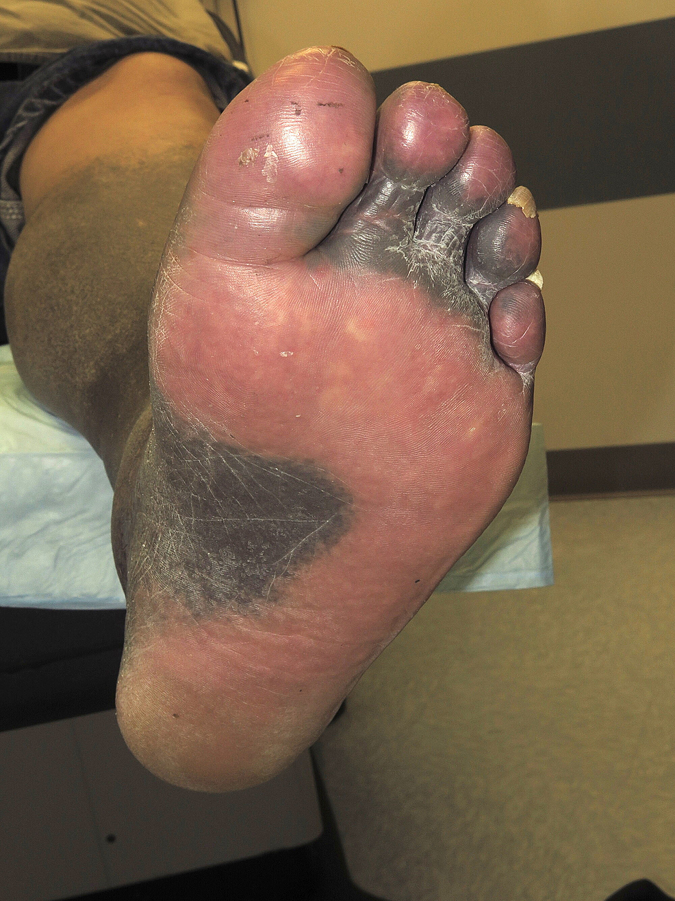 Pigment-distribution-on-the-sole
