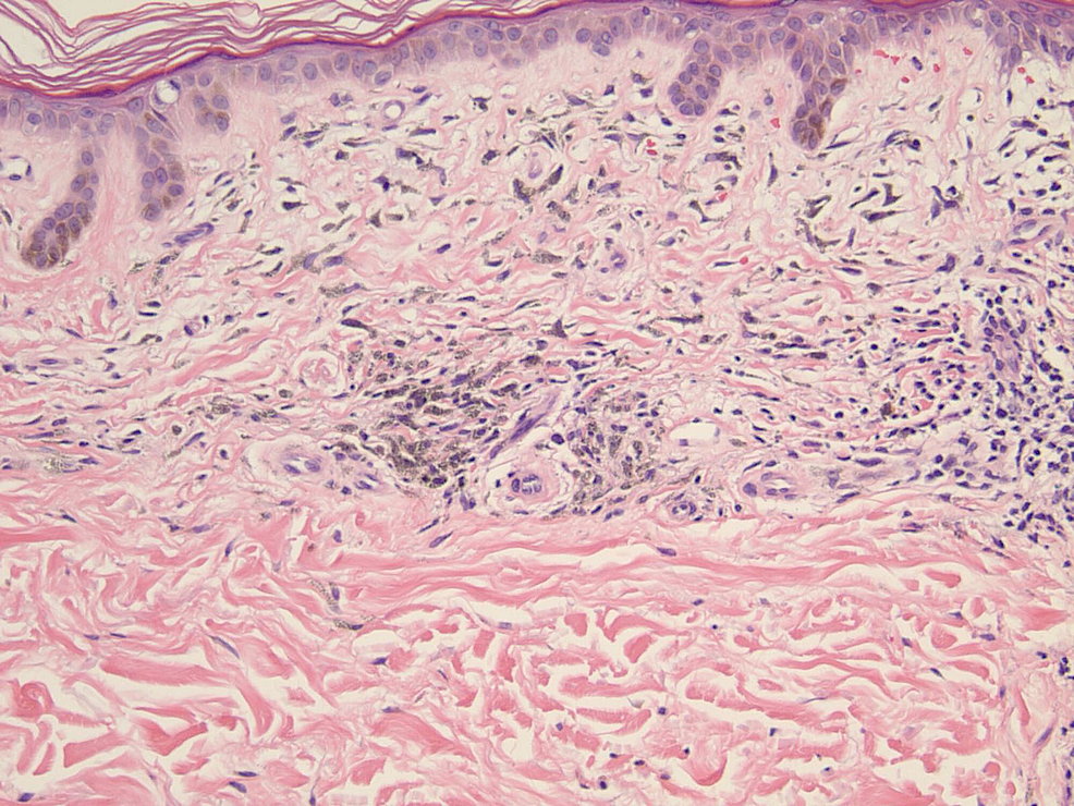 H&E-stain-at-20x-magnification