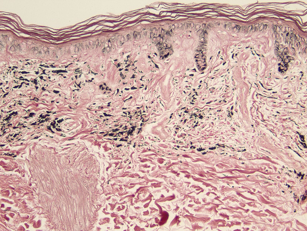 Fontana-Masson-stain-at-20x-magnification