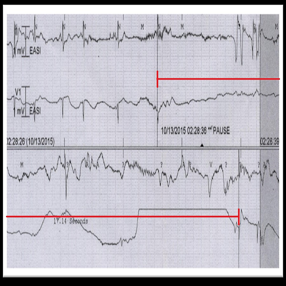 Telemetry-strip-showing-17-seconds-sinus-pause-(red-mark).