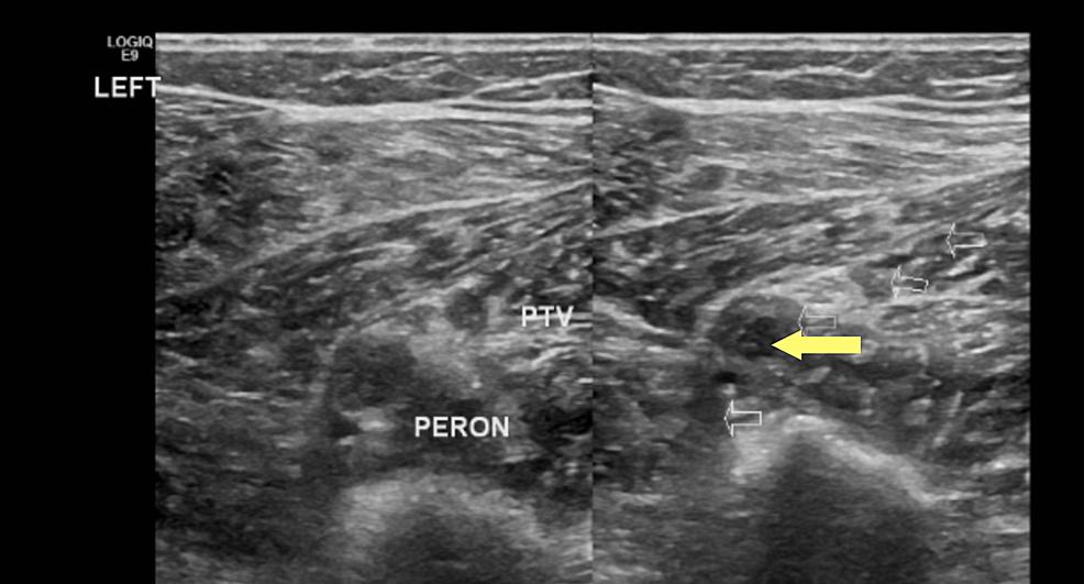 Left-peroneal-vein-deep-vein-thrombosis-(yellow-arrow),-axial-view