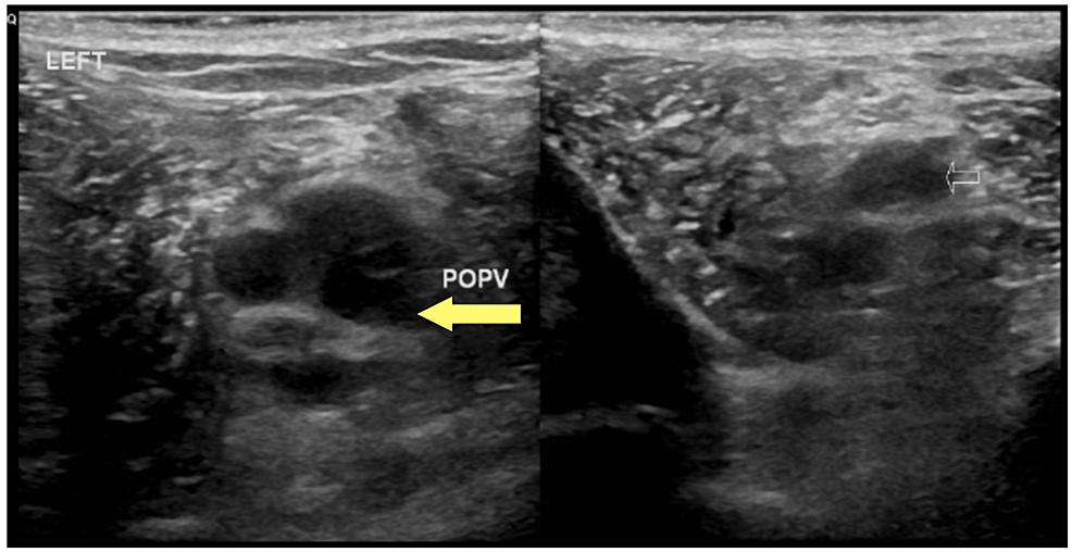 Left-popliteal-vein-deep-vein-thrombosis-(yellow-arrow),-axial-view