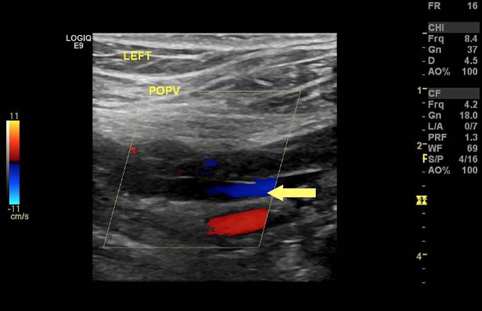 Doppler-ultrasound-for-left-popliteal-vein-showing-partial-occlusion