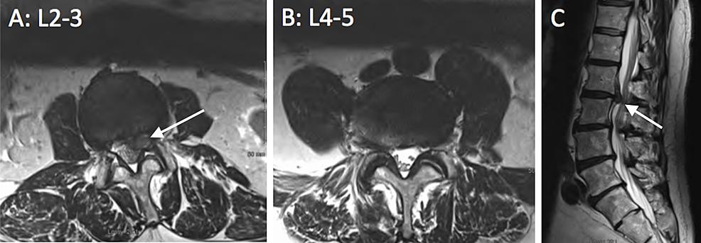 Lumbar-Spine-MRI