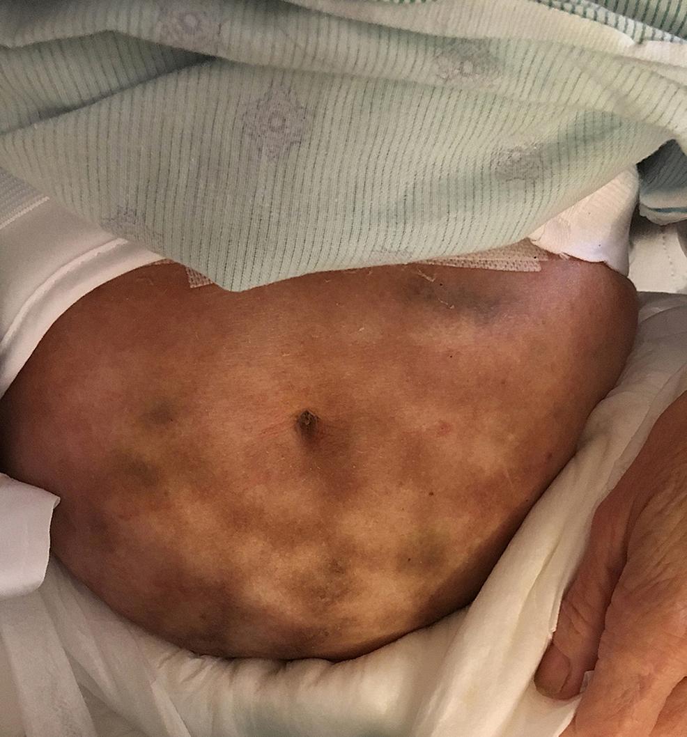 Patient-2:-Erythema-ab-igne
