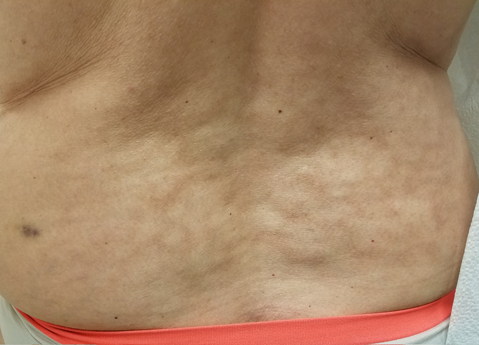 Cureus | Erythema Ab Igne from Heating Pad Use: A Report of