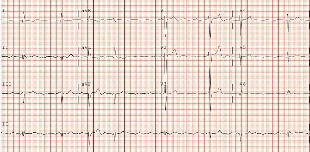 Atrial-tachycardia-with-a-variable-high-grade-AV-block