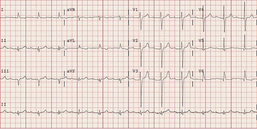 EKG-two-years-before-admission-showing-first-degree-AV-block-with-LBBB