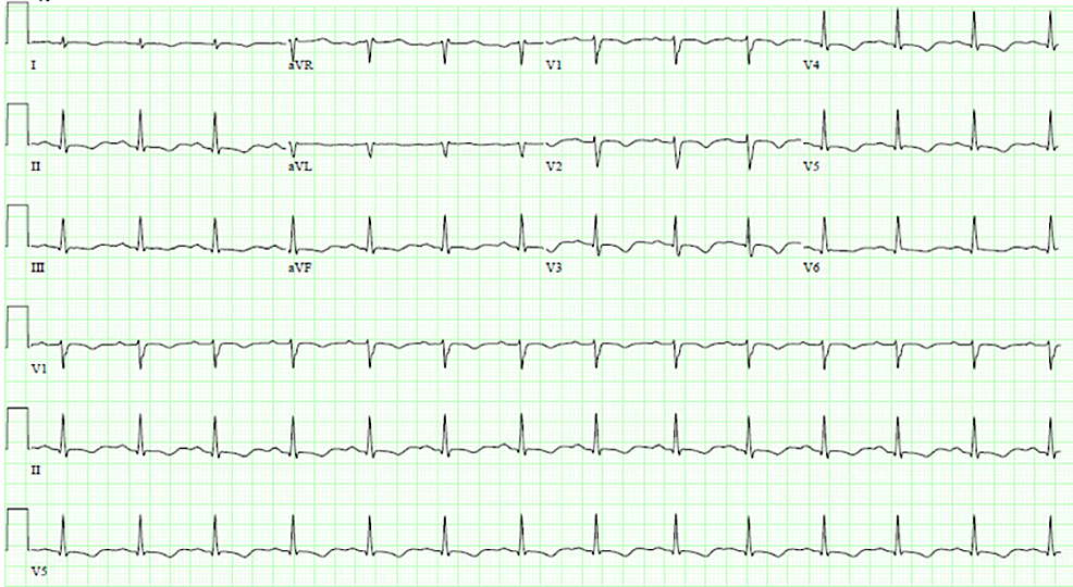 Electrocardiogram-–-T-wave-inversions-in-leads-V2-V5,-less-prominent-in-II,-III,-aVF.