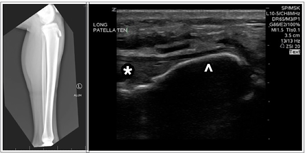 Radiograph-demonstrating-fracture-of-the-left-tibial-tubercle-(left);-ultrasound-of-the-knee-(right)-demonstrating-avulsed-tibial-tuberosity-(arrowhead)-with-attached-patellar-tendon-(*)