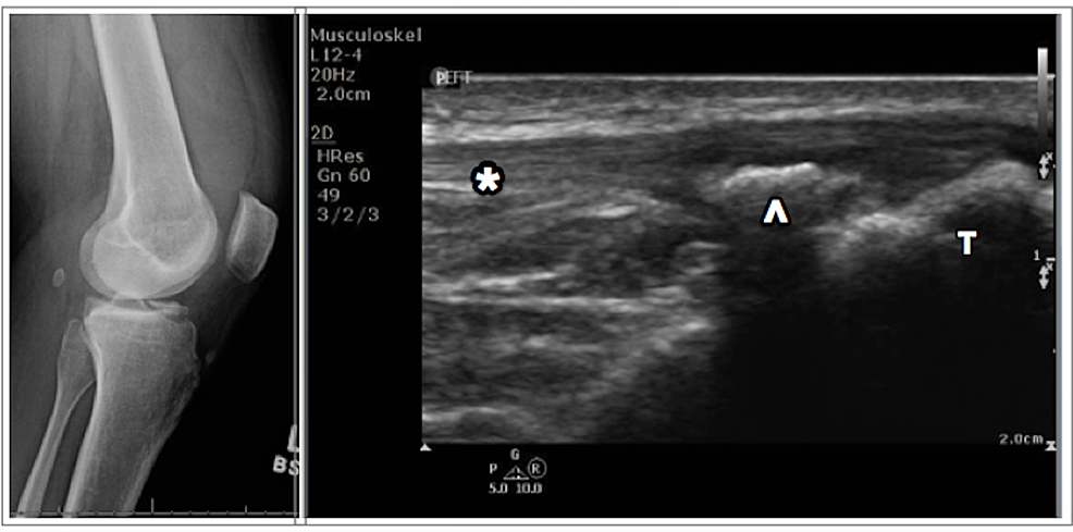 Radiograph-of-the-left-knee-(left);-ultrasound-of-the-knee-(right)-demonstrating-the-tibia-(T)-with-an-avulsed-portion-of-the-anterior-tibial-spine-(arrowhead),-and-an-overlying-intact-patellar-tendon-(*)