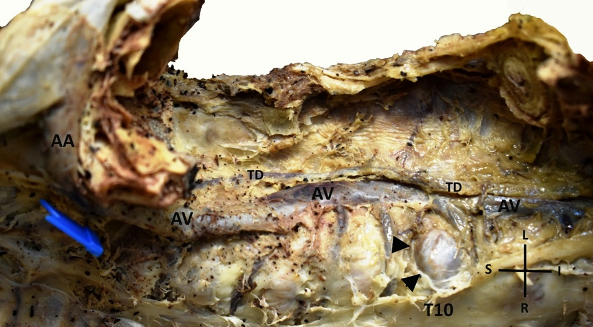 Cureus | A Left-sided Azygos Vein in a Cadaver: Anatomical and ...