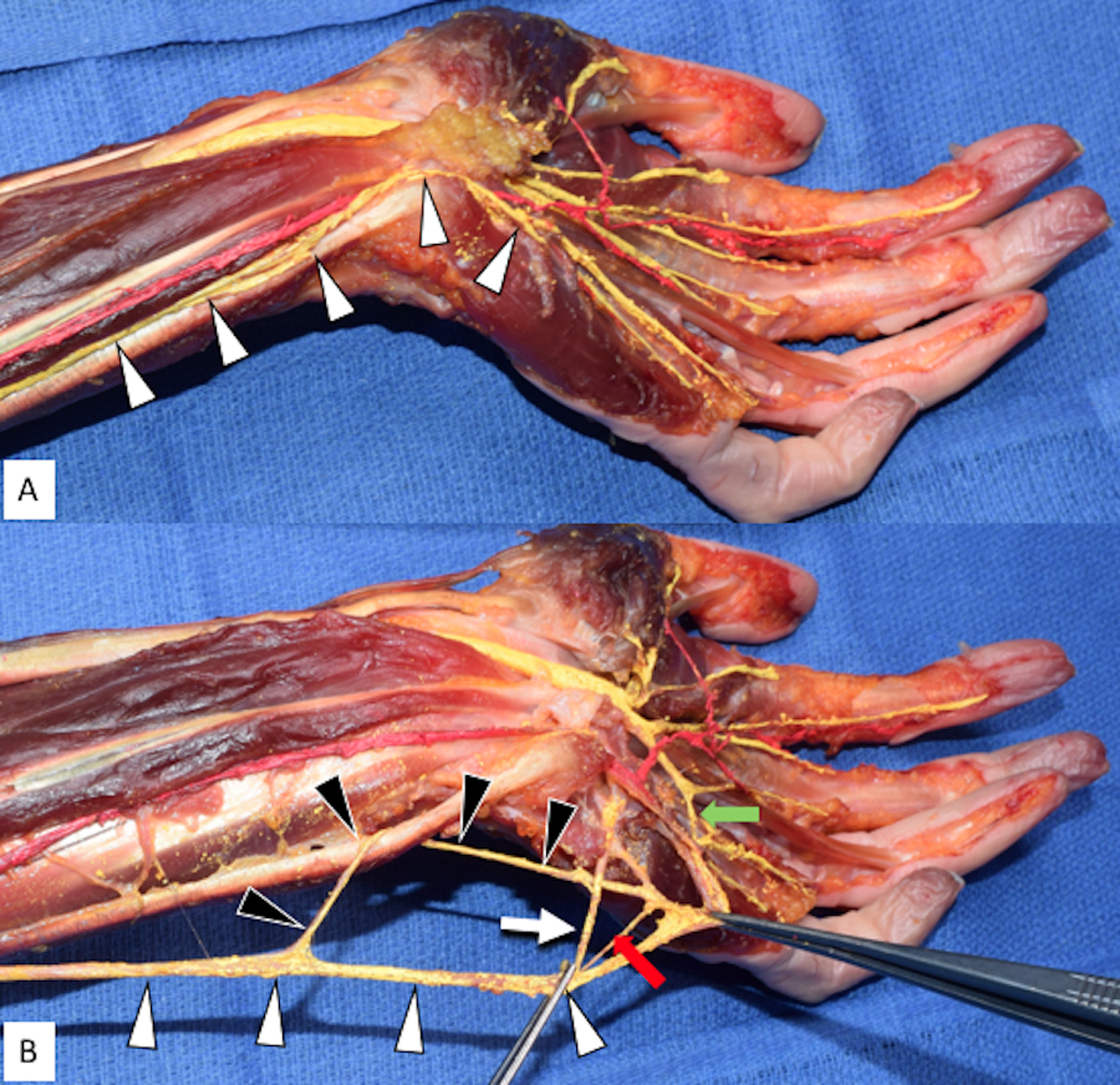 Cureus Variant Distal Ulnar Nerve Loop A Previously Undescribed