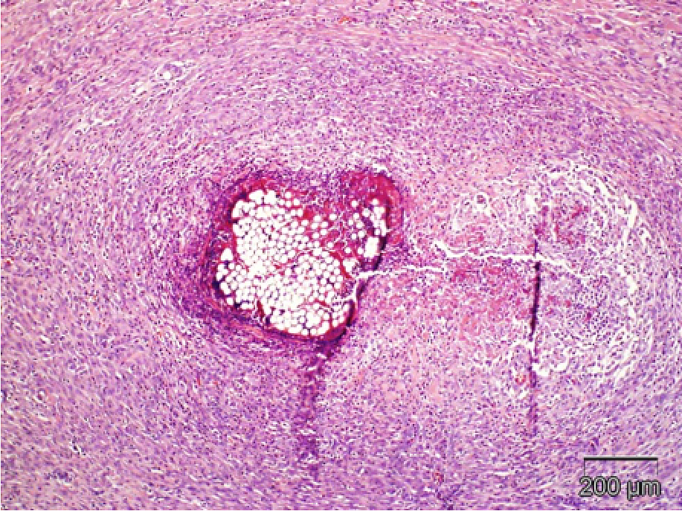 Skin,-suture-closure-plus-bacterial-infection-induction.-In-this-high-magnification-photomicrograph-of-the-deep-dermis,-there-is-intense-chronic-suppurative-and-foreign-body-inflammation-surrounding-a-cross-section-of-a-suture.-There-are-bacterial-colonies-associated-with-the-suture.-These-findings-indicate-that-the-incision-is-not-healed-and-that-infection-is-present.-H&E-stain.