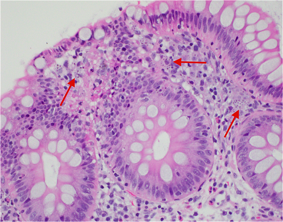 Histiocytosis-with-intracellular-microorganisms-within-the-lamina-propria.