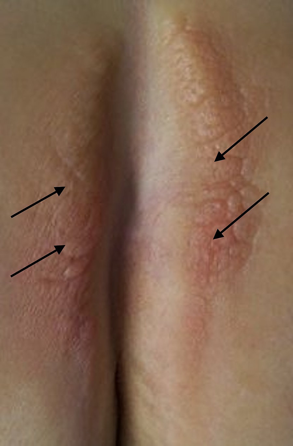 Granulomatous-reaction-on-the-buttocks-at-the-site-of-the-silicone-injections