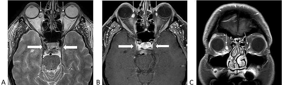 Magnetic-resonance-imaging-of-the-brain-demonstrating-varices-of-inferior-ophthalmic-veins-bilaterally-(long-arrows),-infratemporal-venous-vessels-(short-arrows),-and-normal-cavernous-sinuses-(thick-arrows).-
