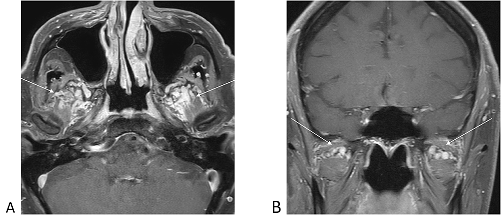 Post-contrast-T1-weighted-magnetic-resonance-images-demonstrating-prominent-pterygoid-plexus-varices-noted-bilaterally-(arrows).-