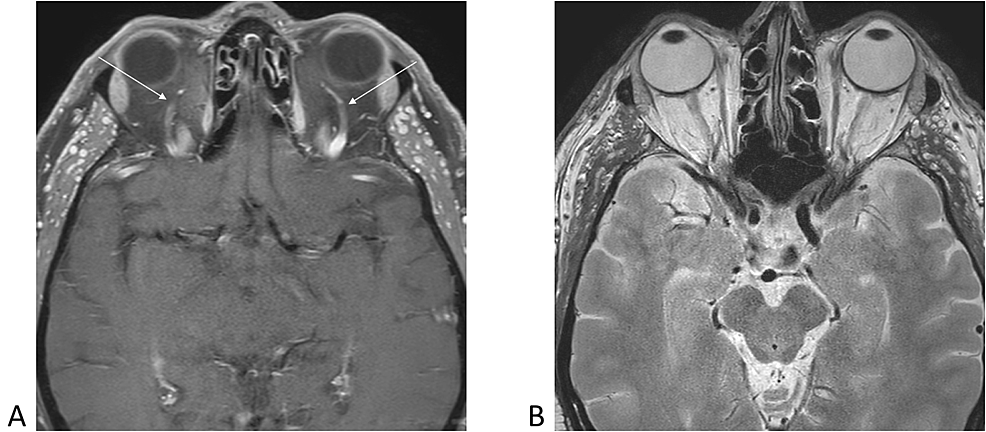 Axial-magnetic-resonance-images-demonstrating-normal-appearance-of-bilateral-superior-ophthalmic-veins-(arrows)-and-normal-morphology-of-eyeballs-and-optic-nerves-bilaterally.-