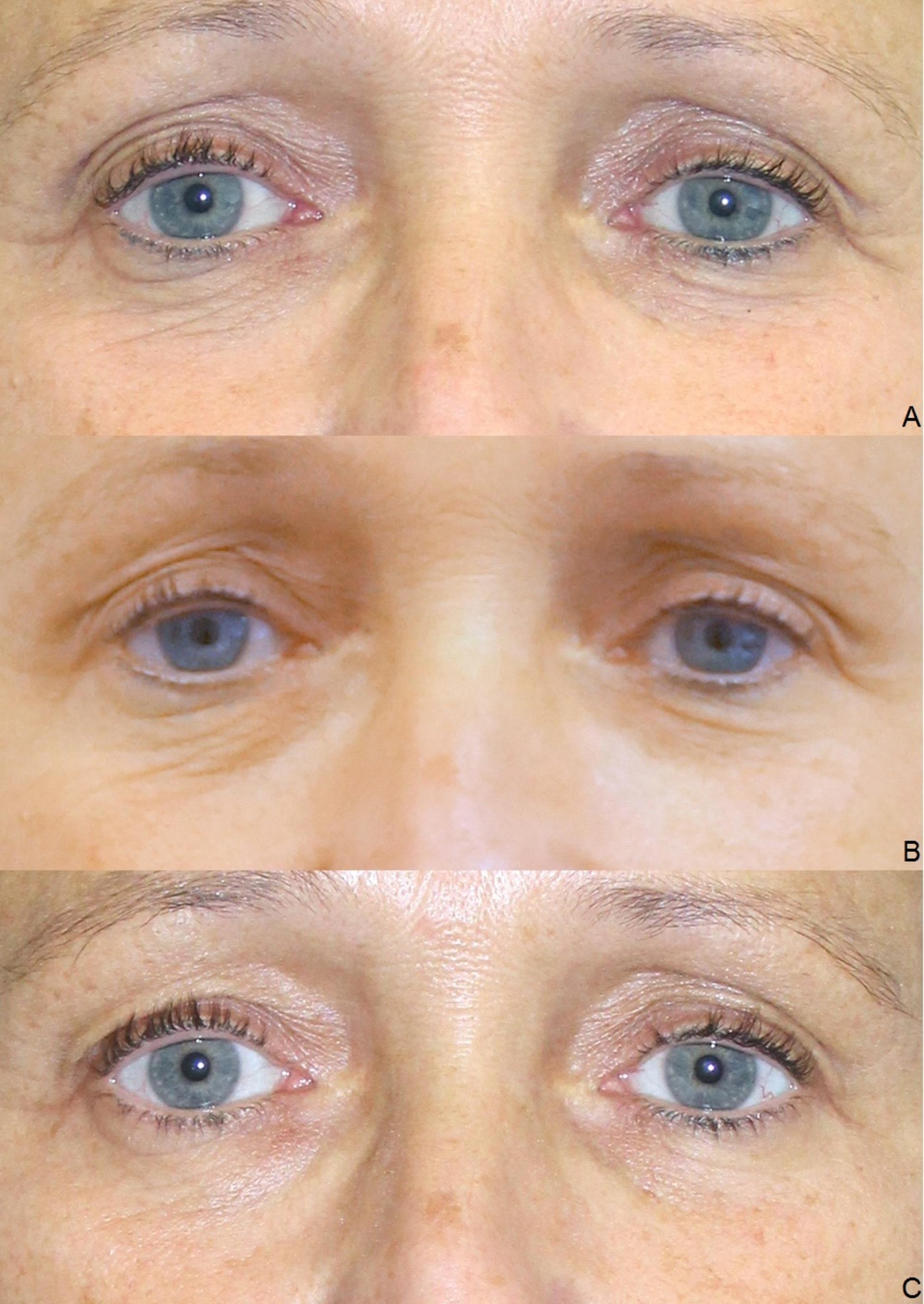 Cureus | Platelet-rich Plasma for Skin Rejuvenation and