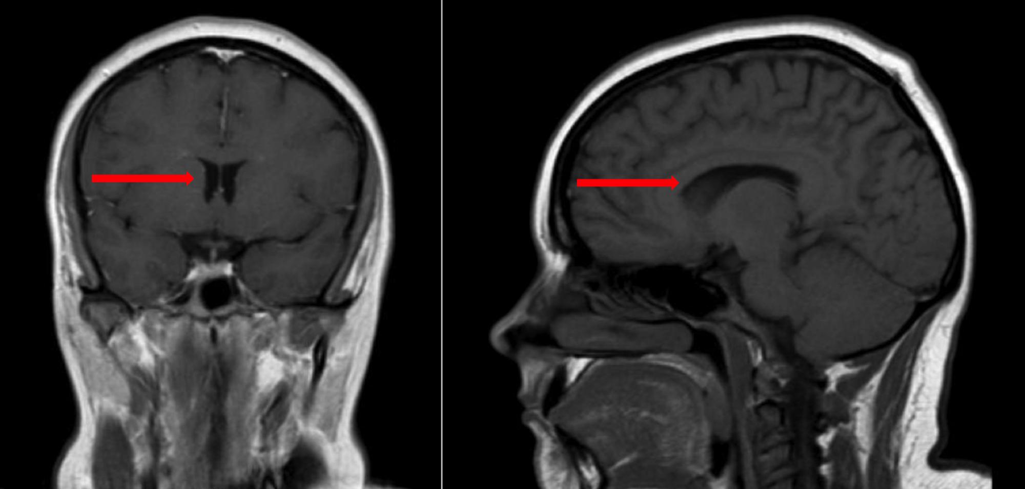 Image result for Pseudotumor cerebri