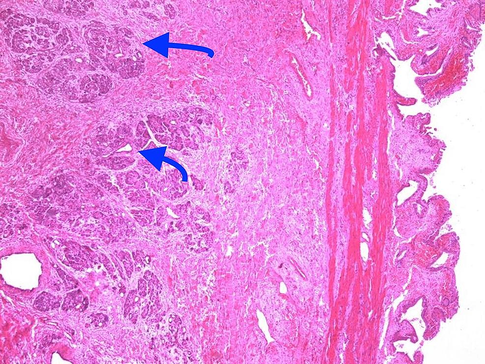 Heterotopic-pancreatic-tissue-located-in-gallbladder-(H&E-x100)