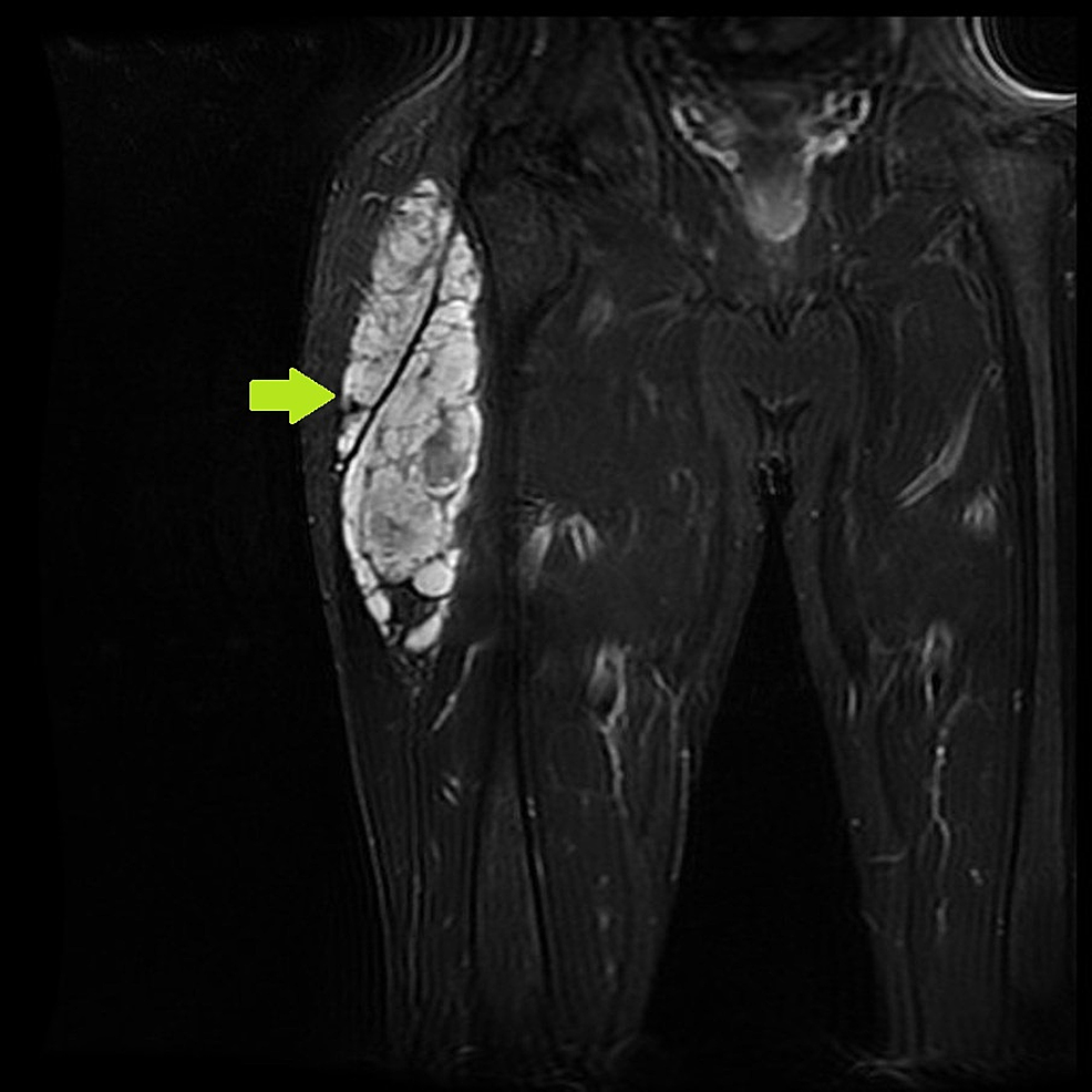 Magnetic-resonance-imaging-(MRI)-showing-right-gluteal-extraskeletal-myxoid-chondrosarcoma.