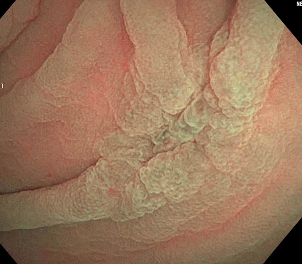Endoscopy---Isolated-5-mm-ulcer-in-the-cecum.