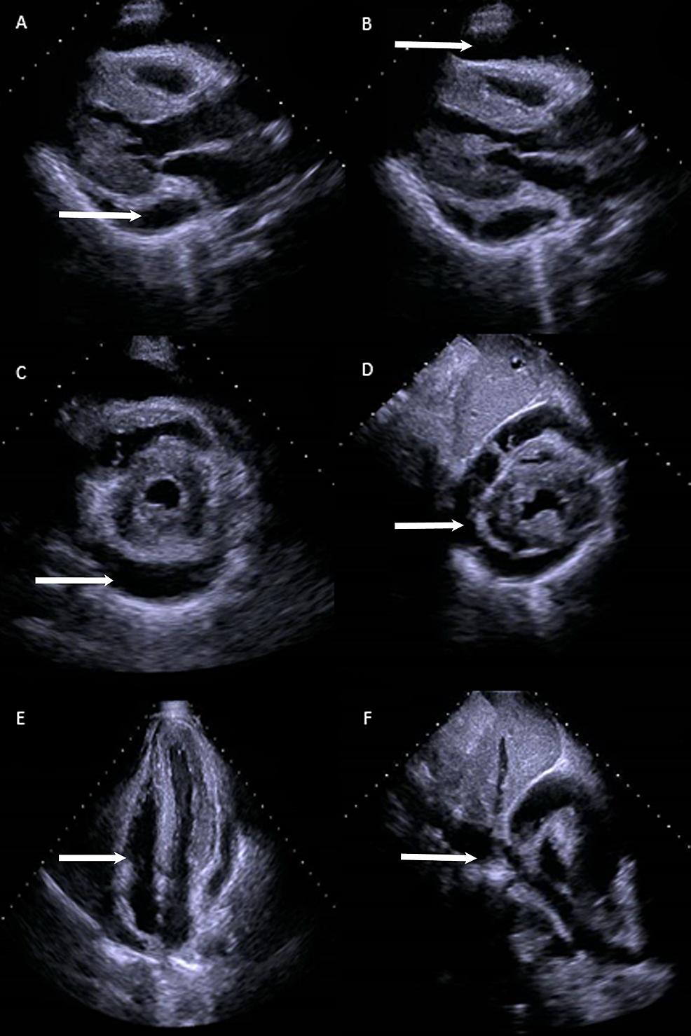 Echocardiogram.