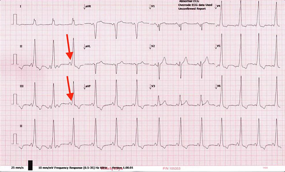 ECG-before-procedure