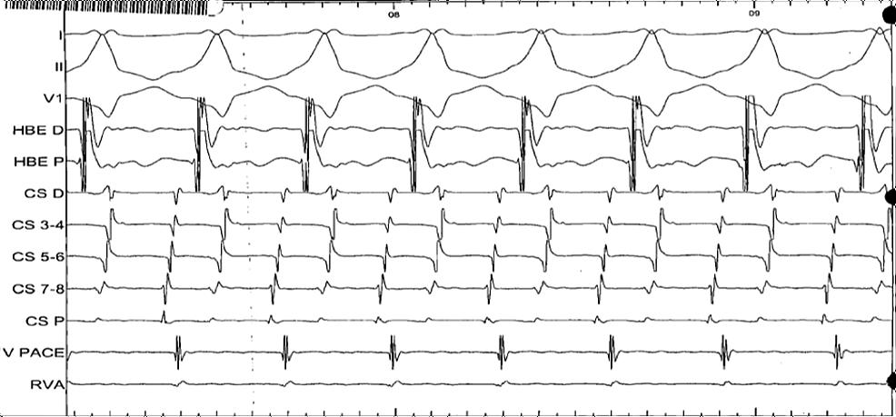 Intracardiac-ECG-during-the-electrophysiology-study
