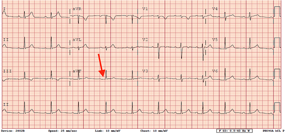 ECG-after-ablation-of-accessory-pathway