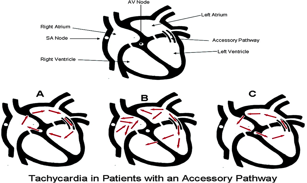 The-schematic-diagram-of-different-types-of-arrhythmias-in-WPW