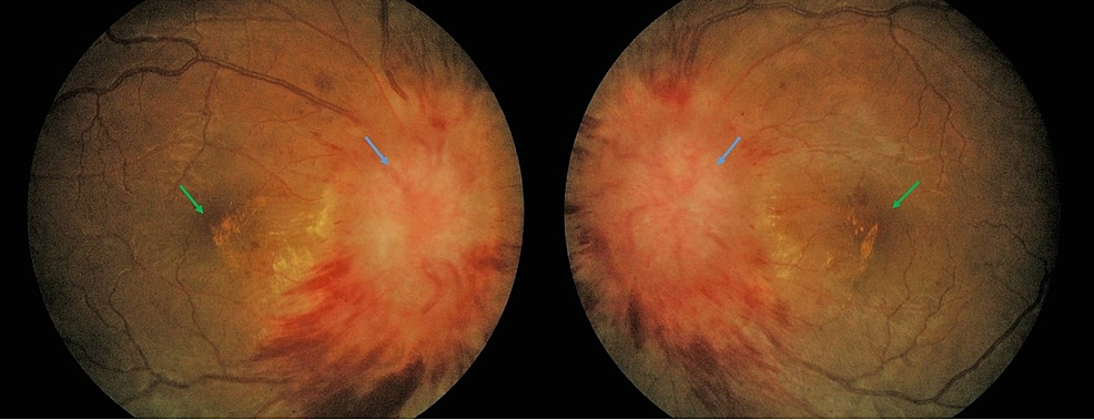 Fundus-photography-of-bilateral-eyes