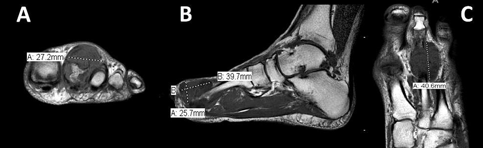 Pre-operative-magnetic-resonance-imaging-(MRI)-of-the-left-foot-without-contrast:-(A)-coronal,-(B)-sagittal,-and-(C)-axial-images-at-the-level-of-the-lesion-with-measurements