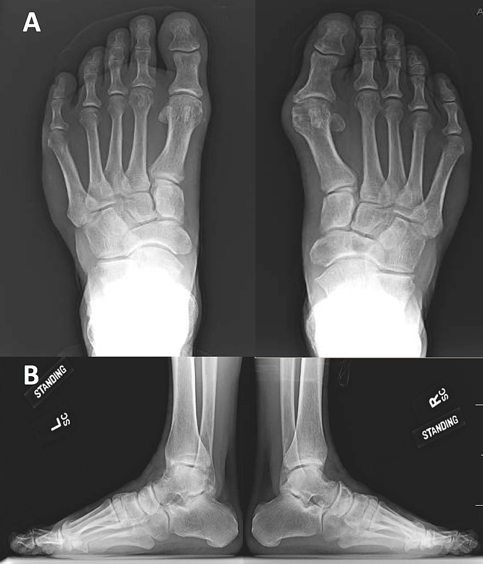Cureus A Case Of A Second Intermetatarsal Space Gouty Tophus With A Presentation Similar To A Morton S Neuroma