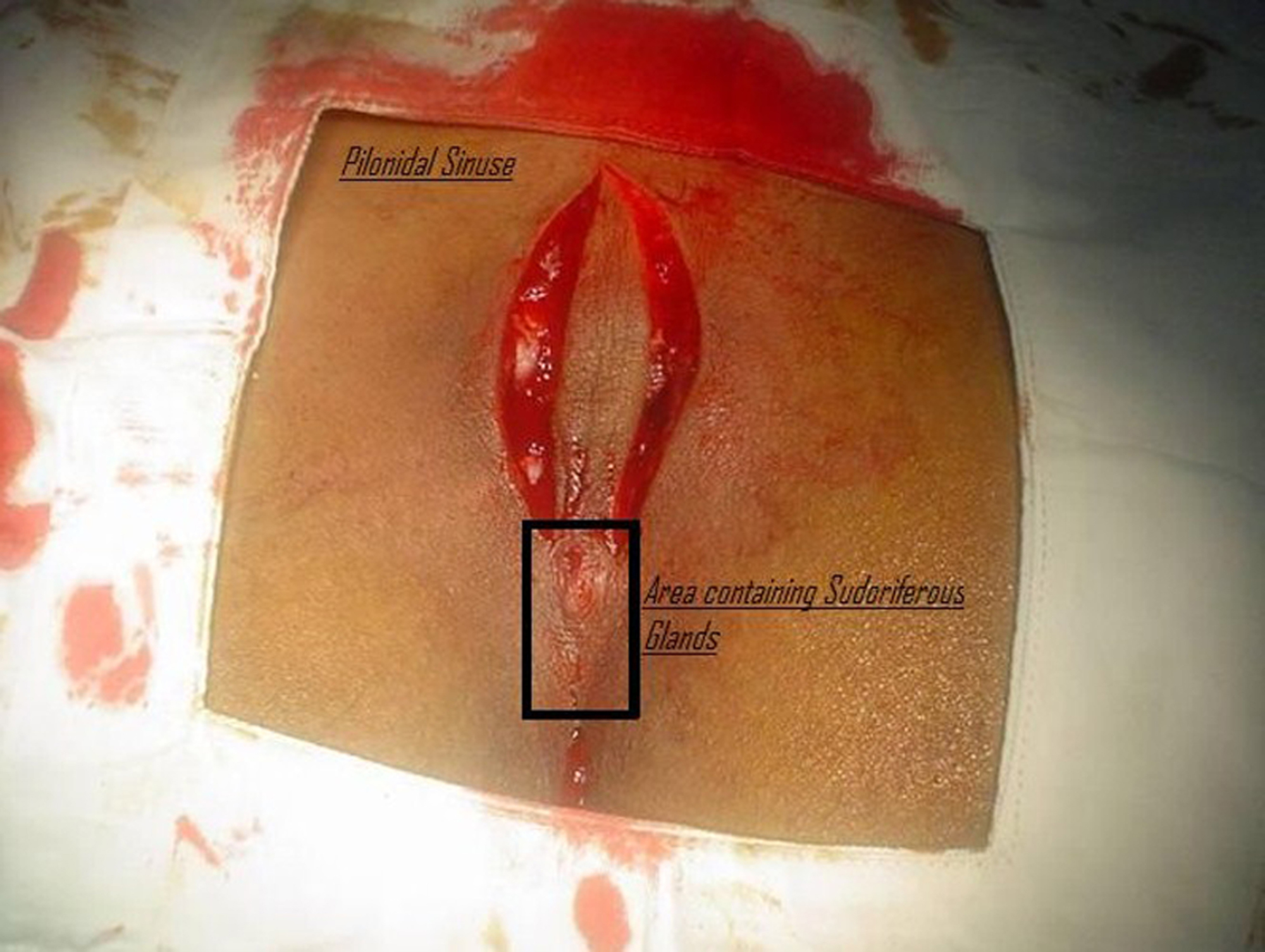 Cureus | Excision of the Gluteal Cleft Pilonidal Sinus, Its