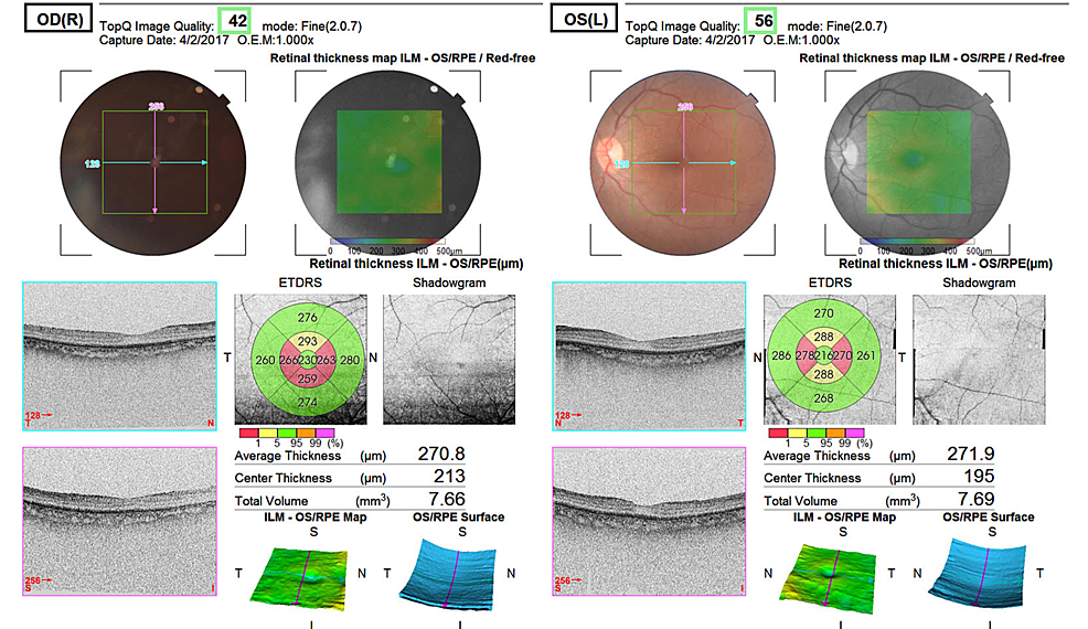 Ultrasonography-B-scan.
