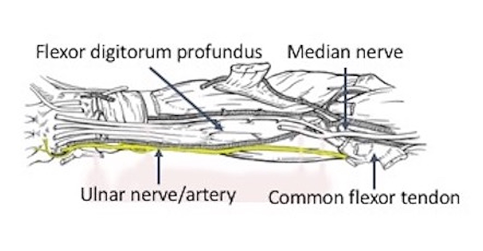 Schematic-drawing-of-regional-neurovascular-structures-related-to-the-ulnar-nerve-(yellow)-in-the-right-forearm.