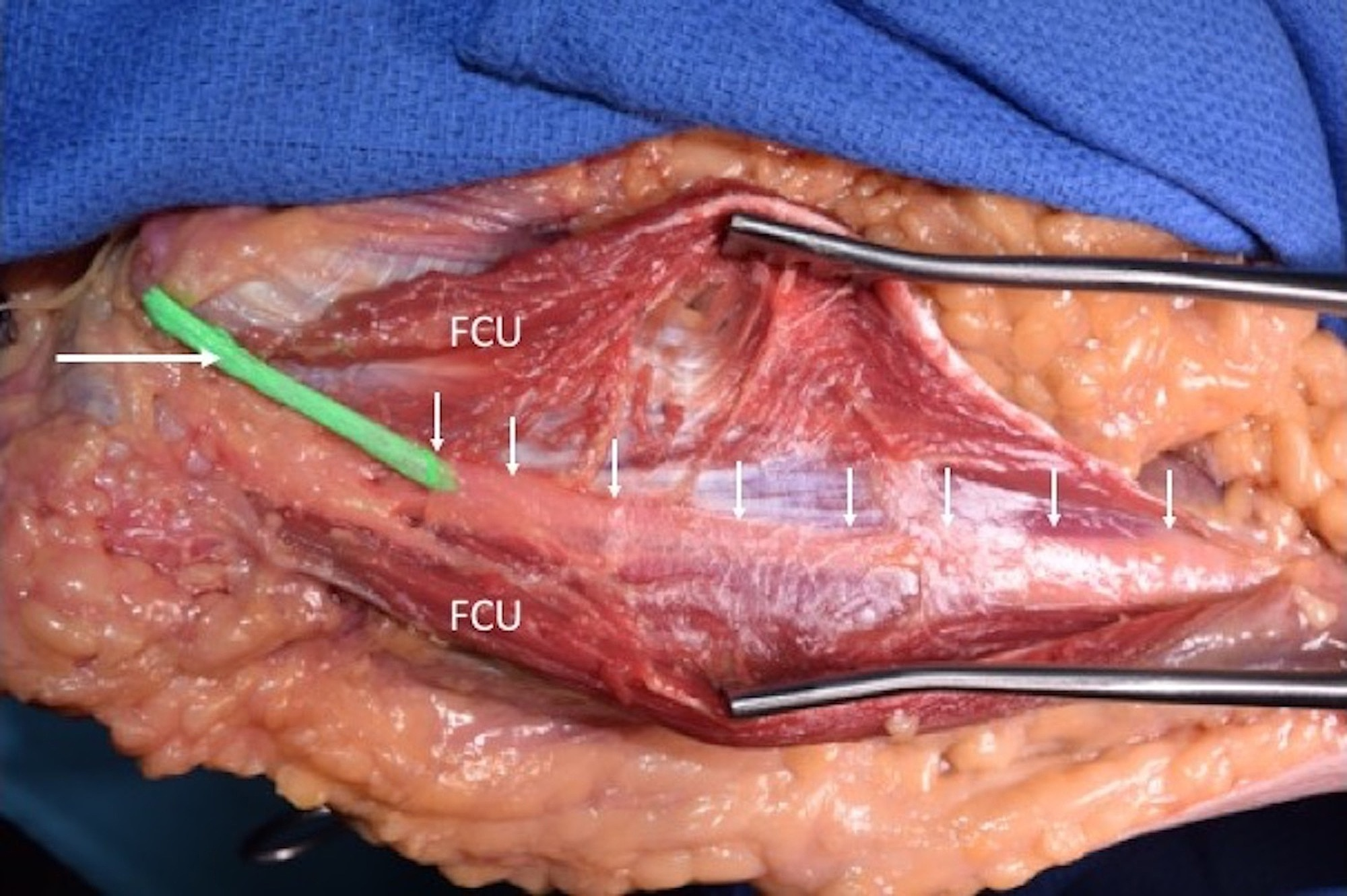 Cureus | The Deep Fascia of the Forearm and the Ulnar Nerve: An ...