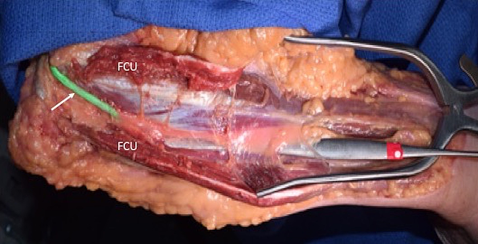 A-dissector-is-placed-under-deep-fascia-of-the-forearm-i.e.,-in-the-space-where-the-ulnar-nerve-travels.