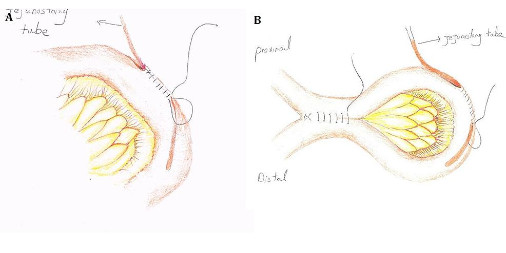 Schematic-View-of-the-Jejunostomy-with-Proximal-Enteroenterostomy