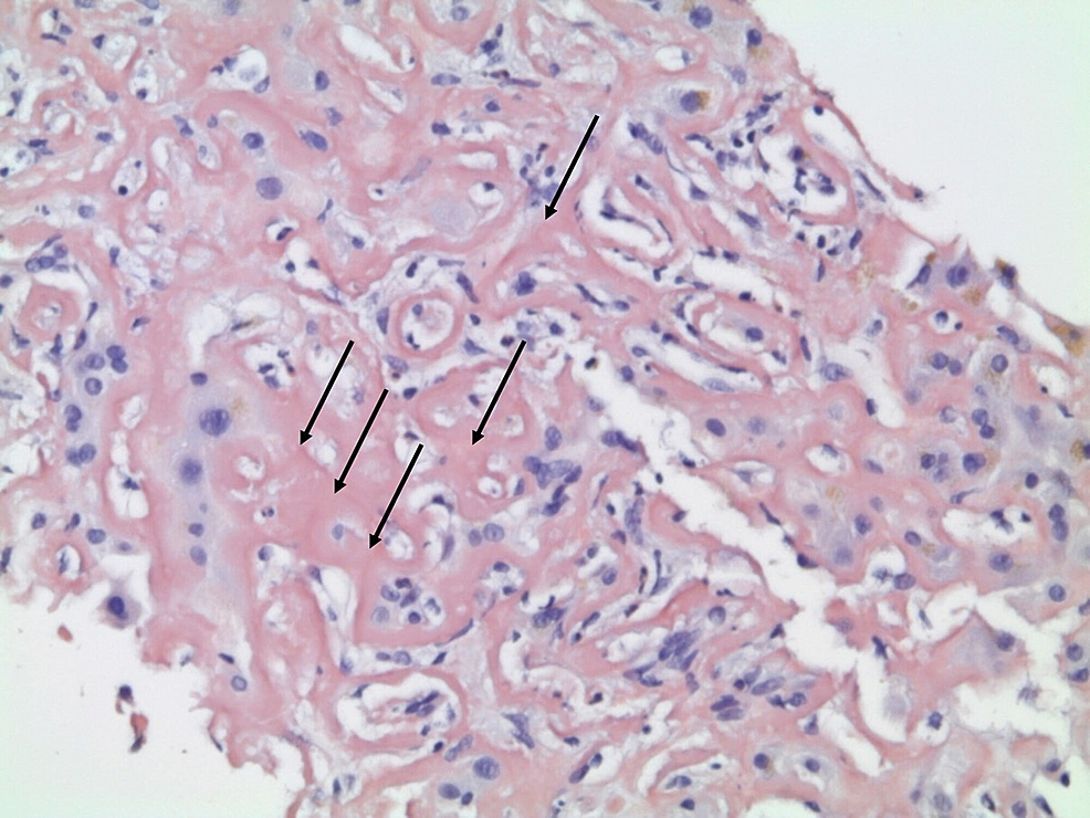Liver-histology-on-diagnosis