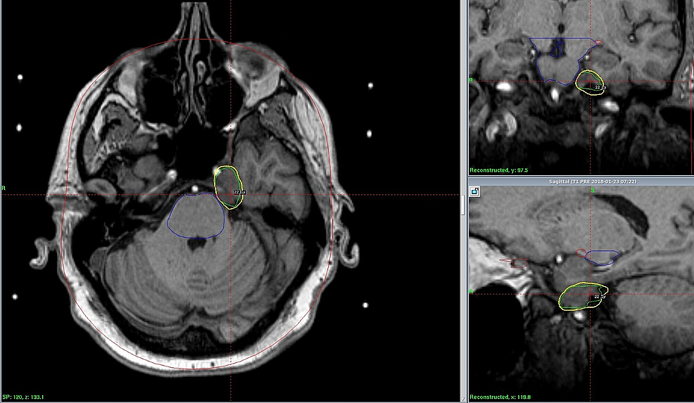 Gamma-Knife-treatment-plan-with-the-tumor-GTV-outlined-in-green,-50%-isodose-line-in-yellow,-and-brainstem-in-blue