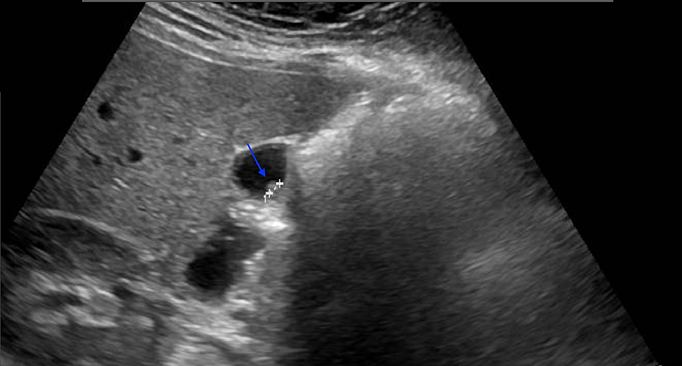 Ultrasonographic-image-of-the-polyp-(blue-arrow)