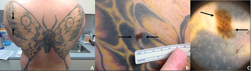 Routine-dermatological-examination-revealed-an-atypical-pigmented-lesion-within-a-large-tattoo