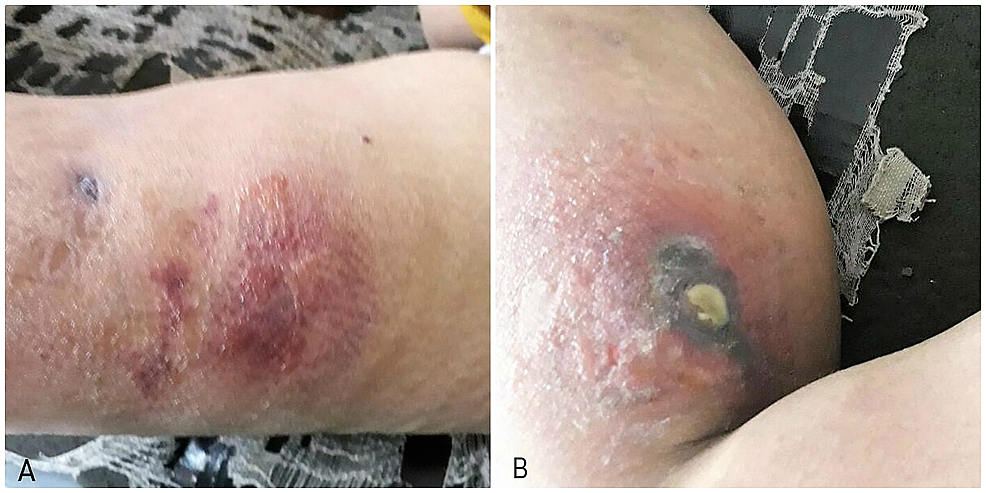 (A)-shows-scarred-and-indurated-lesion-on-left-thigh.-(B)-Ulcerated-lesion-with-purulent-discharge-on-right-buttock.