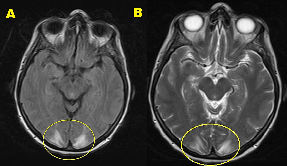 Brain-MRI-w/wo-contrast.-A)-T2-TSE-sequence,-B)-T2-FLAIR-sequence.-Showing-bilateral,-symmetric-areas-of-T2-FLAIR-hyperintensity-involving-the-posterior-parietal-and-occipital-lobes.-There-was-no-evidence-of-acute-stroke,-intracranial-hemorrhage,-hydrocephalus,-dural-venous-sinuses-thrombosis,-or-intracranial-metastatic-disease.