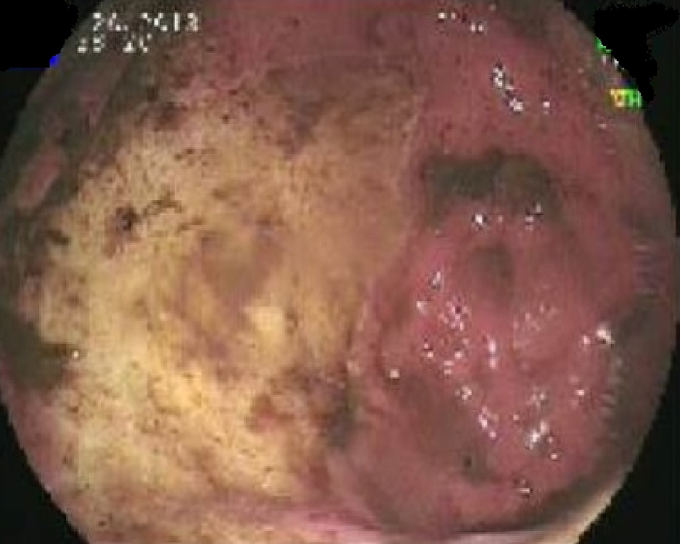 EGD-showing-a-large-malignant-looking,-friable,-fungating,-ulcerated-mass-in-the-gastric-body.